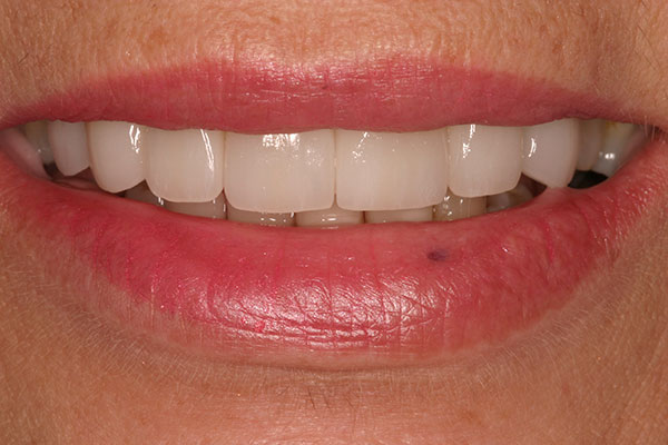 Closeup beautiful healthy top teeth