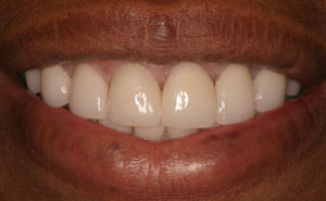Smile with white teeth and healthy gums