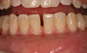 Closeup damaged bottom teeth