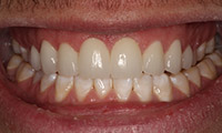 Young man after porcelain veneers closeup