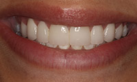 Young woman after porcelain veneers closeup