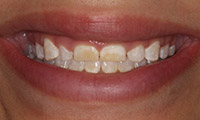 Young womant before porcelain veneers closeup