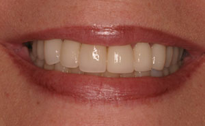 Closeup of white teeth