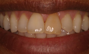 Dark colored teeth before whitening