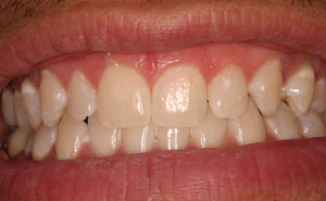 Gorgeous teeth after whitening