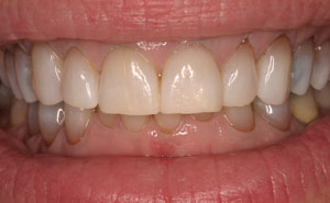 Brilliant picture-perfect smile after teeth whitening
