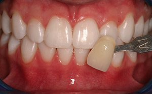 Brilliant smile after professional whitening