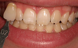 Discolored teeth before professional whitening