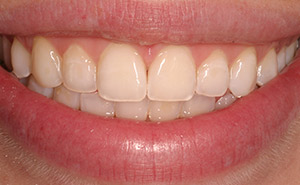 Brilliant white teeth before professional whitening