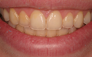 Yellow teeth before professional whitening