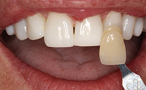 Brilliant top teeth after whitening