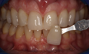 Discolored top teeth before whitening