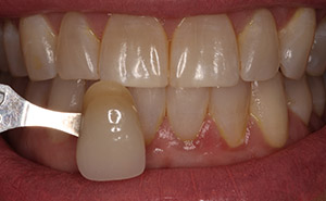 Dental discoloration before teeth whitening