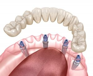 Illustration of All-on-4 dental implants for lower arch