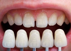 Porcelain veneers next to imperfect teeth.